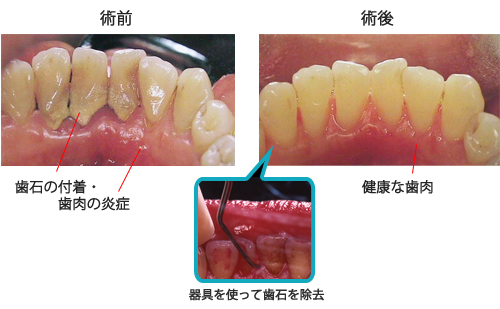 歯石 - Calculus (dental) - JapaneseClass.jp
