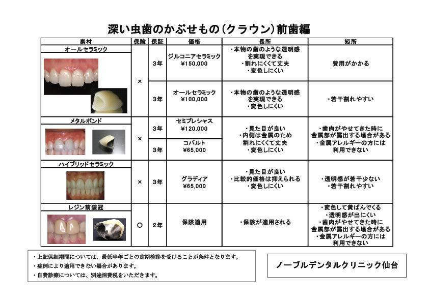 歯 かぶせ もの 値段