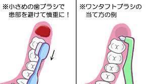 抜歯 後 歯磨き