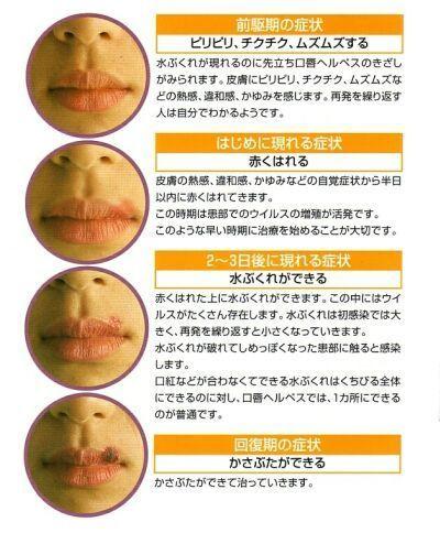 口唇ヘルペスの症状経過