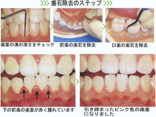 歯石取り(歯石除去・クリーニング)-ノーブルデンタル ...
