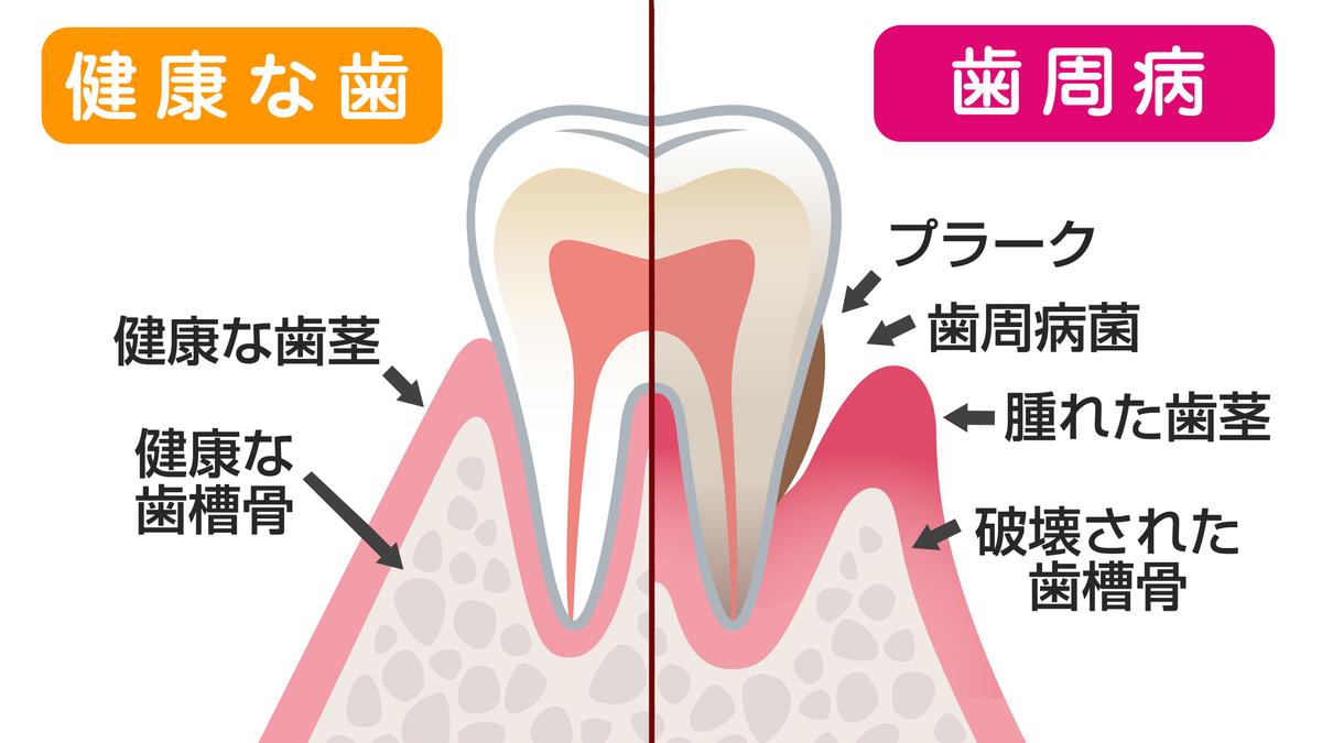 歯周病での歯の痛み(歯槽膿漏)ーノーブルデンタルクリニック ...