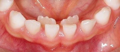 抜け ない の 歯 子供 乳歯の正しい抜き方!グラグラしてなかなか抜けないときは?