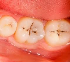で 虫歯 治す 自力 25年間絶えなかった虫歯。「重曹」で虫歯がなくなった!最強の重曹うがい始めませんか?