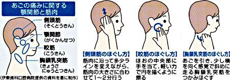 痛 方 症 治し 関節 額