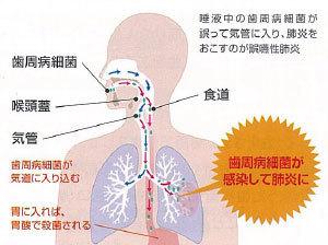 は 誤 肺炎 嚥 性 と 誤嚥性肺炎とは?その原因や予防方法は?【高齢者 口腔機能