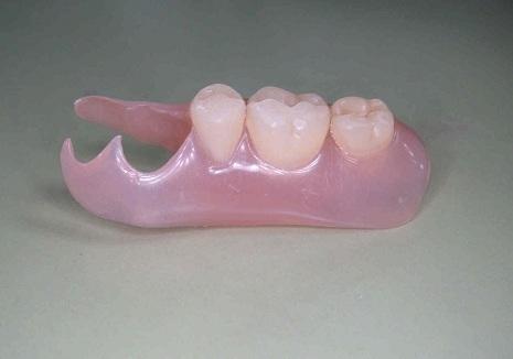 2 値段 入れ歯 奥歯 部分 本 歯がない場合の3つの治療法!料金相場や治療期間も比較